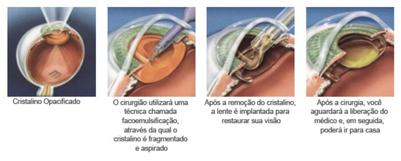 cristalino-oftalmologia-mutton