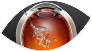medicações intra oculares-clinica-oftalmologia-mutton-sorocaba