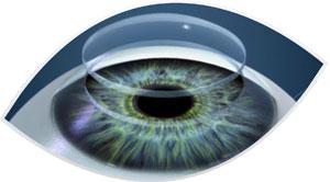 transplante-de-cornea-clinica-oftalmologia-mutton-sorocaba