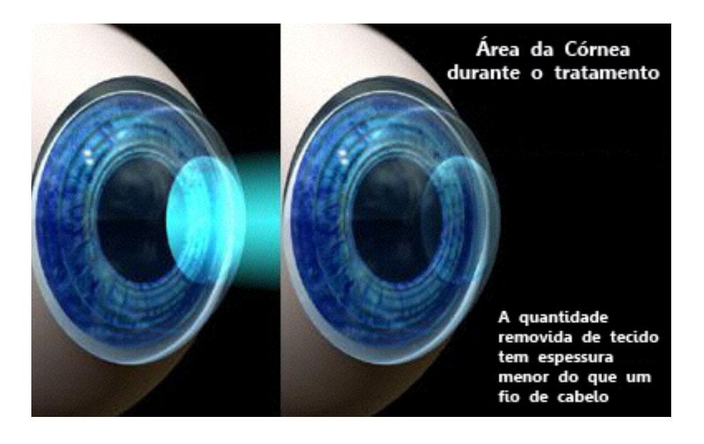 tratamento-da-cornea-sorocaba
