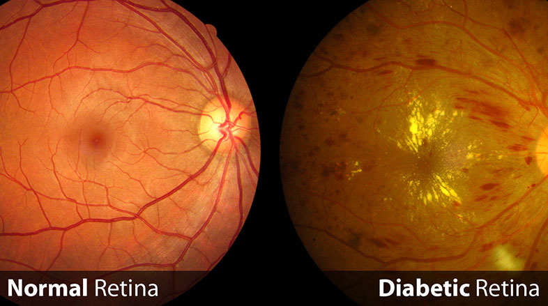Retinopatia-diabética
