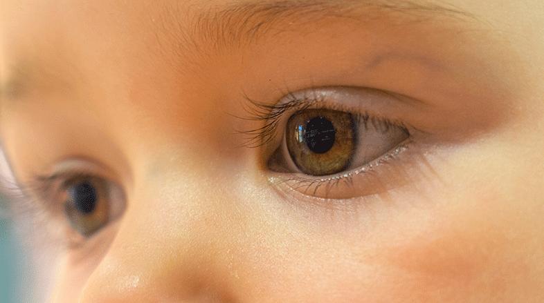 Glaucoma-Congênito