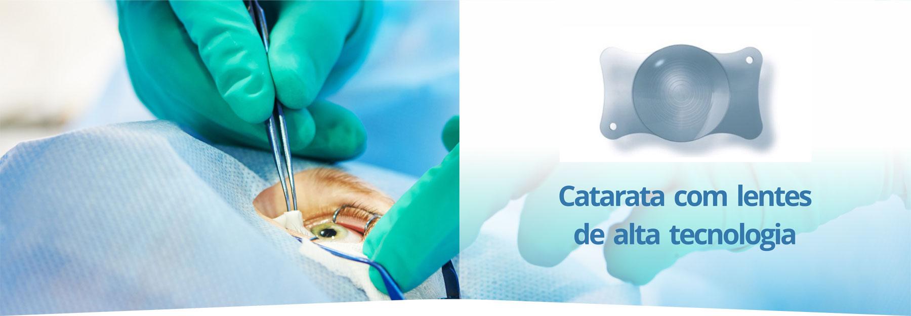 catarata-sorocaba-oftalmologia